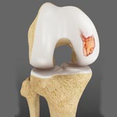 Knee Cartilage Defects